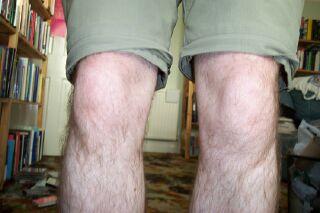 Lynn Bowles's legs?